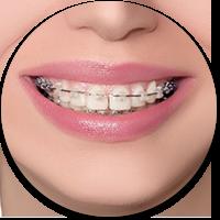 odontoiatria-estetica-napoli